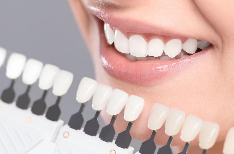 Blanqueamiento dental para sus necesidades