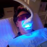 Blanquear los dientes con los mejores dientes que blanquean productos