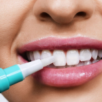 Como puede un blanqueamiento dental pluma cambiar tu vida para siempre