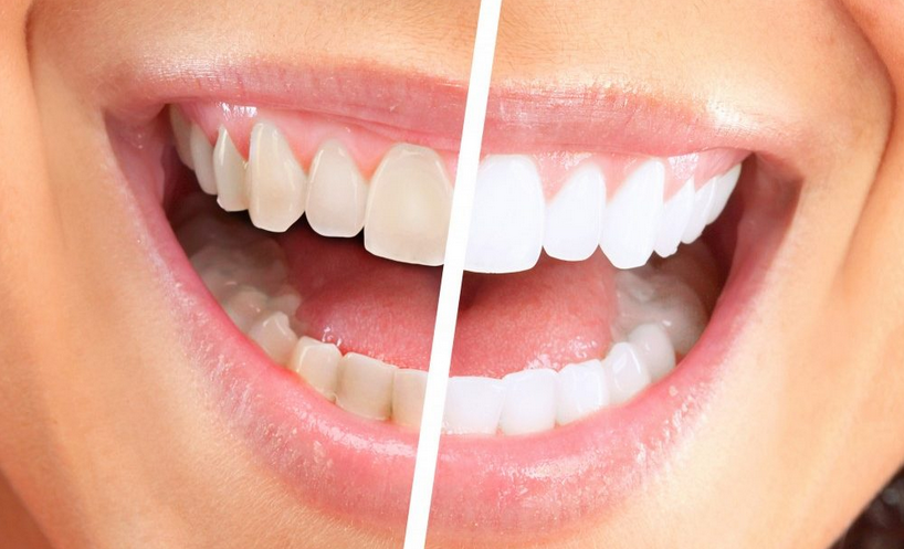 Mejor los dientes que blanquea - manchas ser ido en días!